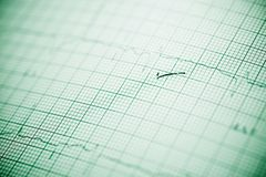 Electrocardiogram close up. Close up of an electrocardiogram in paper form royalty free stock photo