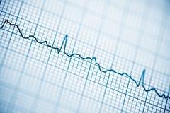Electrocardiogram close up. Close up of an electrocardiogram in paper form stock photos