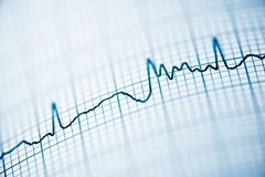 Electrocardiogram close up. Close up of an electrocardiogram in paper form stock images
