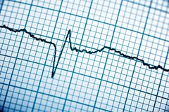 Electrocardiogram close up. Close up of an electrocardiogram in paper form stock photos
