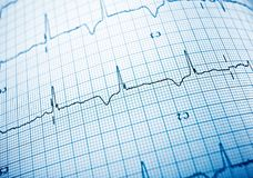 Electrocardiogram close up. Close up of an electrocardiogram in paper form stock photography