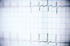 Electrocardiogram close up. Close up of an electrocardiogram in paper form royalty free stock photos