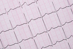 Close up of a Electrocardiograph also known as a EKG. Or ECG graph stock image