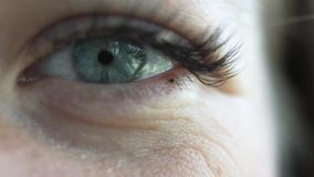 Close-up of an eye. Congenital eyelashes. Focus on the eye, the eye blinks. Slow motion stock video footage