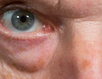 Close up of eye senior caucasian man Royalty Free Stock Images
