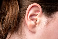 Close up of female ear with source of pain. Earache. royalty free stock photos