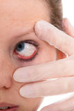 Close up from a female eye with conjunctivitis Royalty Free Stock Photography