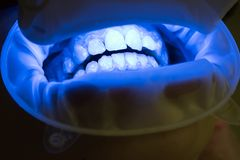 Close up of female mouth. Matching the shades of the implants or the process of teeth whitening. Dentist with an stock photo