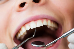 Close-up of female with open mouth during oral checkup at the dentist Stock Photography
