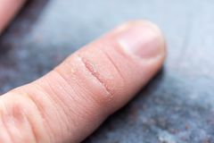 Dry cracked skin on the finger of a male hand royalty free stock photography
