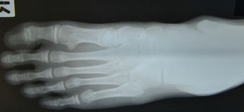 Close up foot bone Stock Photography