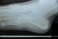 Close up foot bone Stock Photo