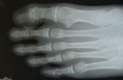 Close up foot bone Royalty Free Stock Photo
