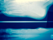 Close up foot bone Royalty Free Stock Images