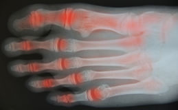 Close up foot x-ray. Medical science background royalty free stock photos