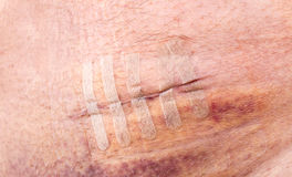 Close-up of a fresh scar or operating wound Royalty Free Stock Images