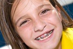 Close up Girl With Braces stock photos
