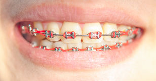 Close-up  girl smiling with braces Royalty Free Stock Photo