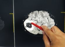 Hand doctor holding a red pen tells the patient the examination mri brain finding brain tumor or mass .Medical concept, b stock image