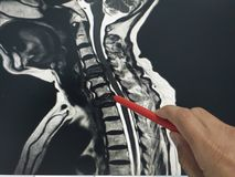 Close up hand doctor holding a red pen tells the patient the examination of the mri c-spine. royalty free stock photo