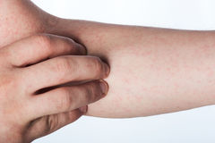 Close up of hand with rash Royalty Free Stock Photos