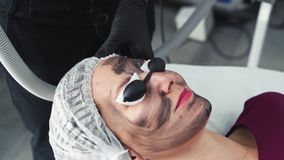 Close-up hands beautician makes carbon peeling procedure on face of young woman in clinic. Laser flash cleans skin of patient face stock footage