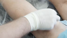 Close-up hands of phlebologist in gloves disinfect leg of patient with varicose veins before sclerotherapy procedure. Concept vascular surgery stock footage