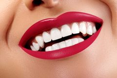 Close-up Happy Smile with Healthy White Teeth, Bright Red Lips Make-up. Cosmetology, Dentistry and Beauty care. Close-up happy female smile with healthy white stock photo