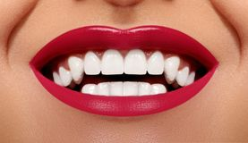 Close-up Happy Smile with Healthy White Teeth, Bright Red Lips Make-up. Cosmetology, Dentistry and Beauty care stock photo
