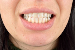 Close up of healthy teeth of young woman. Dental health care. Hy Stock Photo