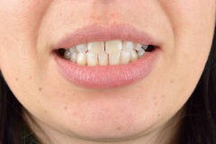 Close up of healthy teeth of young woman. Dental health care. Hy Stock Image