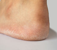 Close up of heel cracked of foot royalty free stock photos
