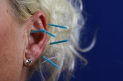 Close up of human female ear with blue needles: Ear acupuncture as a form of alternative chinese medicine royalty free stock image
