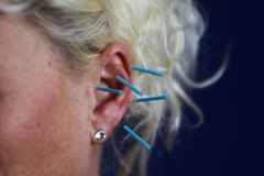Close up of human female ear with blue needles: Ear acupuncture as a form of alternative chinese medicine royalty free stock photos