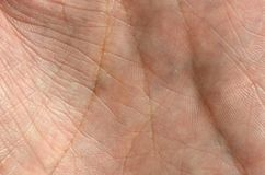 Close up of human hand skin with visible skin texture and lines.  Stock Photo