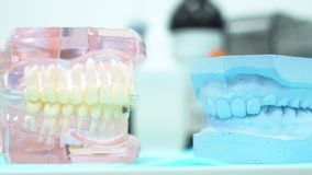 Close up for a human jaw models at a dentist office, teeth care and prosthetics concept. Media. Different dental gypsum. Close up for a human jaw models at a stock photos