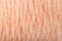 Close up human skin. Macro epidermis Stock Images