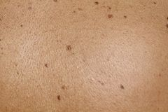 Skin. Close up of human skin with naevus Royalty Free Stock Photos