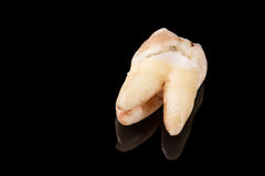 Close up image of bad tooth with caries dental plague with reflection on black Royalty Free Stock Image