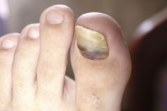 Close up image of right foot toe nail suffering from fungus infection on white background. Close up image of right foot toe nail suffering from fungus infection stock photo
