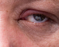 Close up of infected eye Royalty Free Stock Photo
