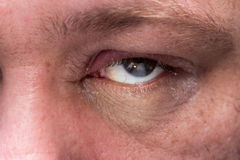 Close up of infected eye Stock Photography
