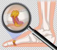 Close up of infection on foot. Illustration stock illustration