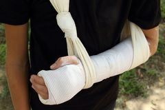 Close up Kid with broken arm and gypsum. royalty free stock photography