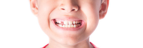 Close up of kid toothless royalty free stock photography