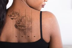 Laser Tattoo Removal On Woman`s Back. Close-up Of A Laser Tattoo Removal On Woman`s Back royalty free stock photo