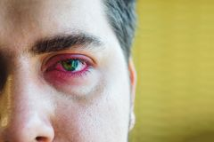 Eyelid abscess royalty free stock images