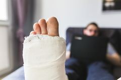 Close-up on a leg in a cast. Close-up on a leg and fingers in a cast stock photo