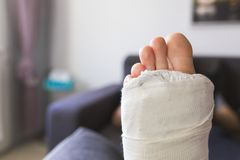 Close-up on a leg in a cast. Close-up on a leg and fingers in a cast royalty free stock image