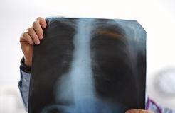 Close up of male doctor holding x-ray or roentgen royalty free stock image
